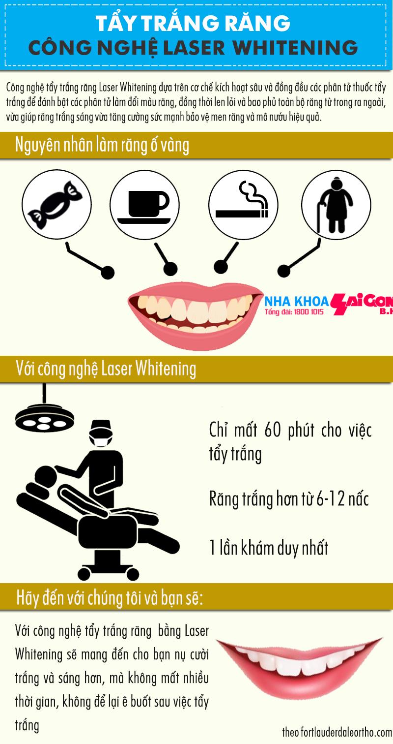 Công nghệ tẩy trắng răng với Laser Whitening