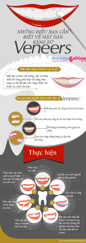Những điều cần biết về mặt dán sứ Veneers
