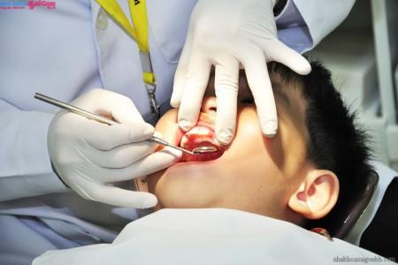 Điều trị tủy răng ở trẻ