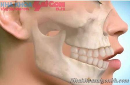 Hai hàm răng không khít nhau nên phục hình như thế nào?