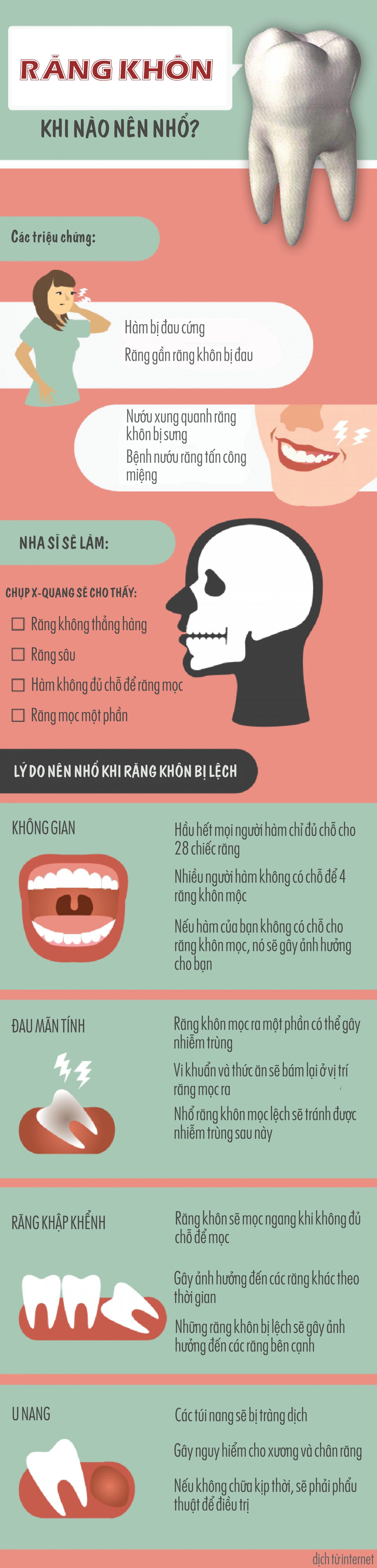 Răng khôn mọc lệch – khi nào nên nhổ