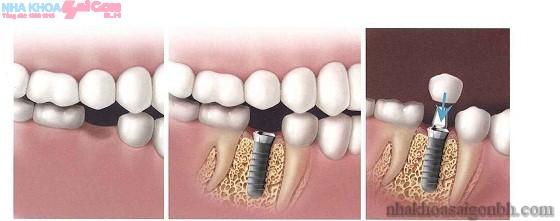 Cấy ghép implant và những điều cần lưu ý
