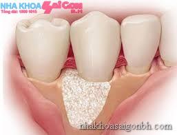 Răng được giữ vững bởi nướu và xương răng