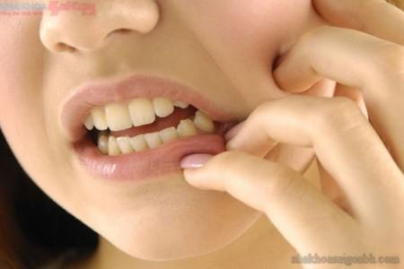 Răng khôn mọc đã lâu gây đau nhức