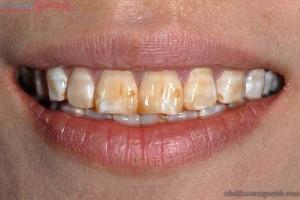 Răng bị nhiễm tetracycline