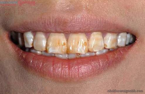 Cách khắc phục khi răng bị nhiễm Tetracycline