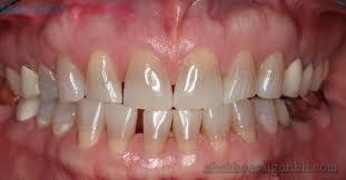 Giải pháp tẩy trắng răng không đều màu