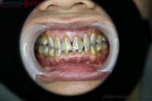 Răng bị nhiễm có màu và thiểu sản men răng