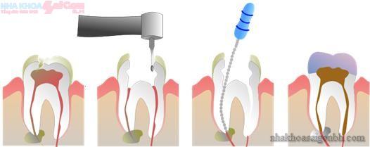 Thời gian cho việc điều trị tủy răng