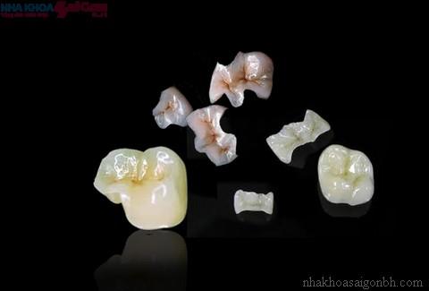 Inlay và onlay phương pháp trám răng  thẩm mỹ nhất
