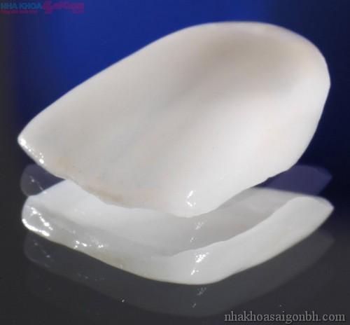 Răng xấu có nên sử dụng mặt dán sứ Veneer?
