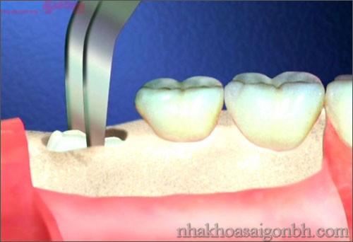 Vì sao hầu hết răng khôn thường phải nhổ bỏ?