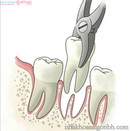 Một số trường hợp cần lưu ý khi nhổ răng?