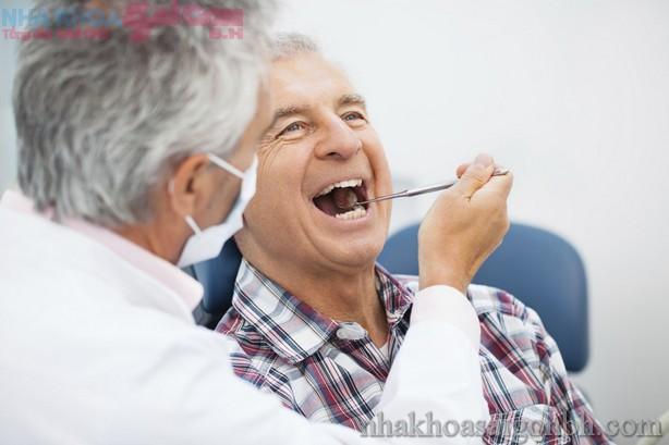 Chi phí bọc răng sứ giá bao nhiêu tiền?