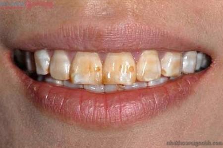 Răng nhiễm tetracyline