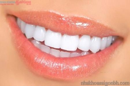 Phục hình răng sứ có tốt không?