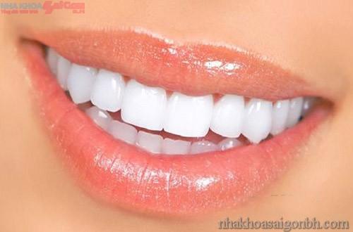 Phục hình răng sứ loại nào tốt nhất?