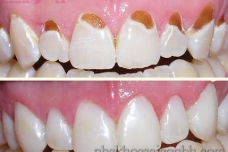 Trám răng cho trường hợp mòn cổ răng
