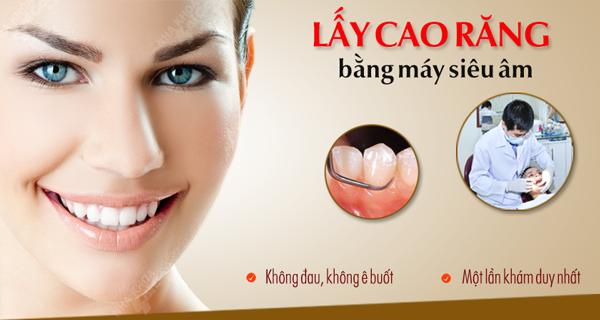 Lấy cao răng an toàn không đau bằng sóng siêu âm