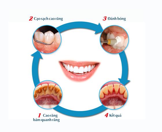 Quy trình lấy cao răng tại Nha khoa Sài Gòn BH