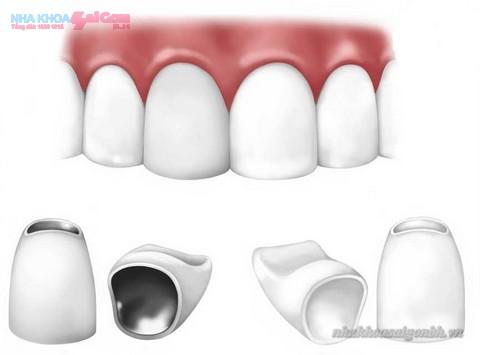 răng sứ mang lại nét thẩm mỹ cho khuôn mặt
