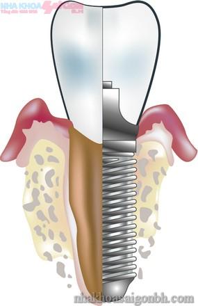 Cấy ghép implant giúp bảo vệ xương hàm