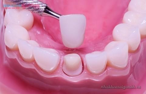 mài bớt răng để trồng răng sứ