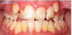 Có nên nhổ răng khi chỉnh nha không?