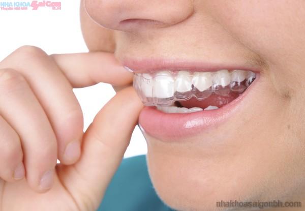 Chi phí niềng răng invisalign là bao nhiêu?