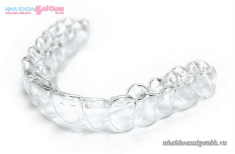 máng tẩy trắng răng tại nhà trong suốt