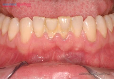 Mảng cao răng gây mất thẩm mỹ