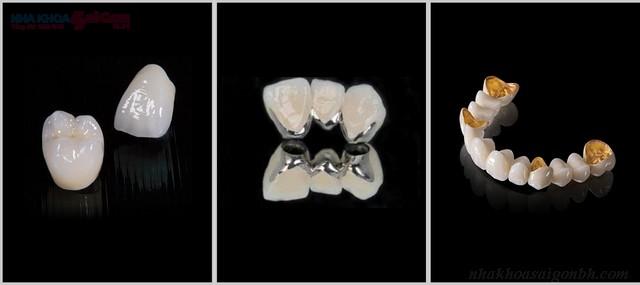 Bọc răng sứ mất thời gian bao nhiêu lâu?