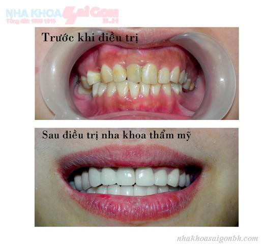 mọi thứ bạn cần biết về răng sứ thẩm mỹ