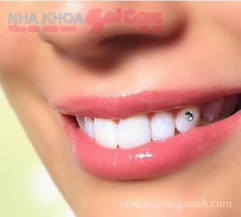 Xu hướng làm đẹp mới với răng đính đá