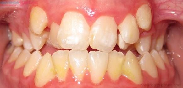 Niềng răng khểnh mất thời gian khoảng bao lâu?