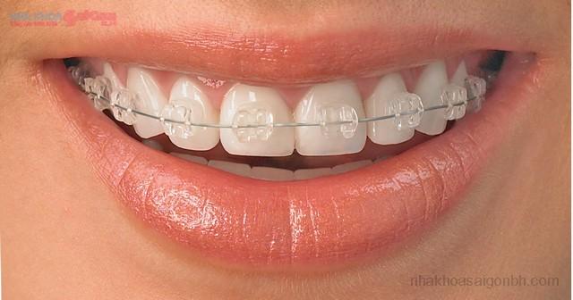 Niềng răng mắc cài sứ thẩm mỹ giá bao nhiêu tiền?