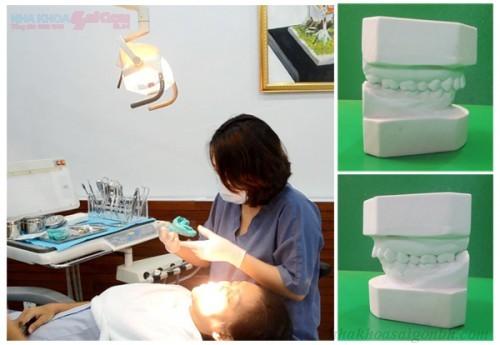 bác sĩ tiến hành lấy dấu răng bệnh nhân