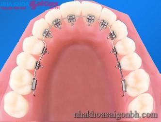 Ở vị trí nào chỉnh răng thưa đem lại hiệu quả cao
