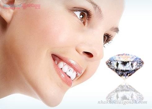 """Răng đính đá """"trang sức"""" thẩm mỹ mới cho răng"""