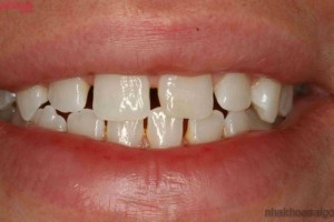 Niềng răng thưa có lợi gì?