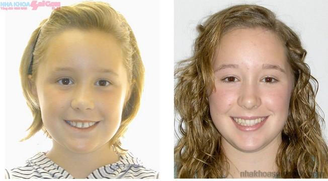 Trước và sau khi niềng răng thưa