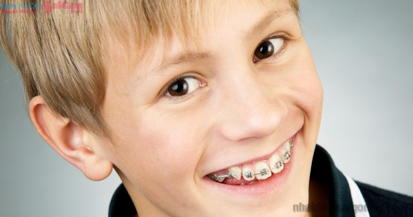 Trị răng hô ko nên niềng răng được ko