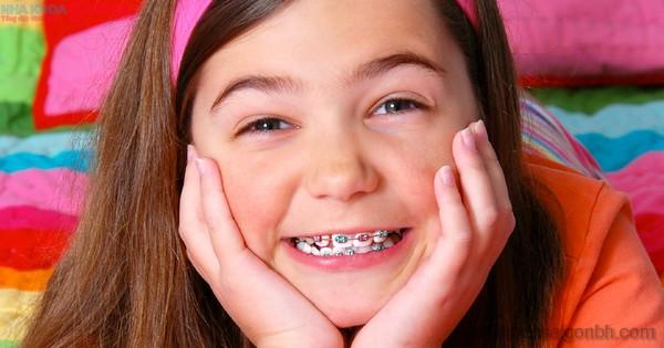 Có nên niềng răng thẩm mỹ cho trẻ em?
