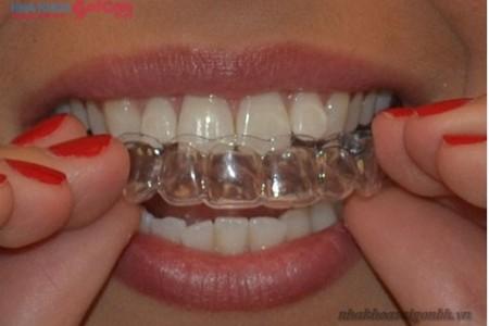 máng tẩy trắng răng tại nhà đeo vào, tháo ra dễ dàng