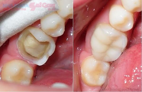 Những trường hợp cần phải làm răng sứ thẩm mỹ