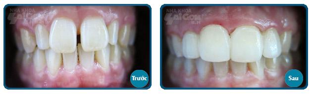 bọc răng sứ giúp răng hết bị hô