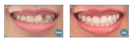 Có nên cấy ghép răng implant không?