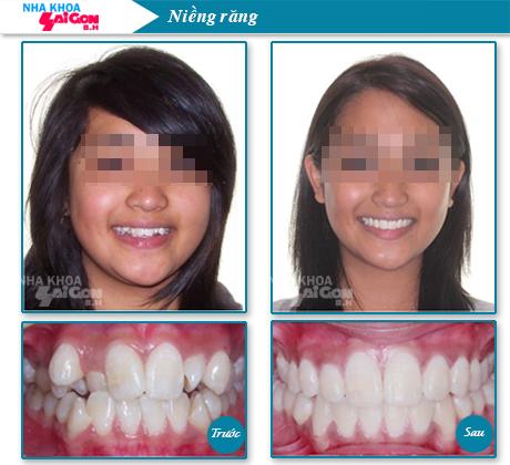Thời gian chỉnh nha niềng răng cho người lớn