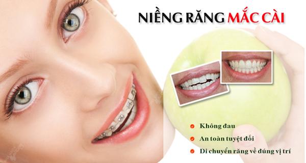 Quy trình niềng răng mắc cài diễn ra như thế nào?
