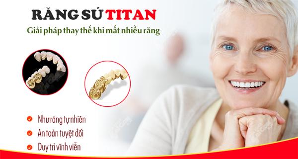 Trồng răng sứ titan tồn tại được bao lâu?